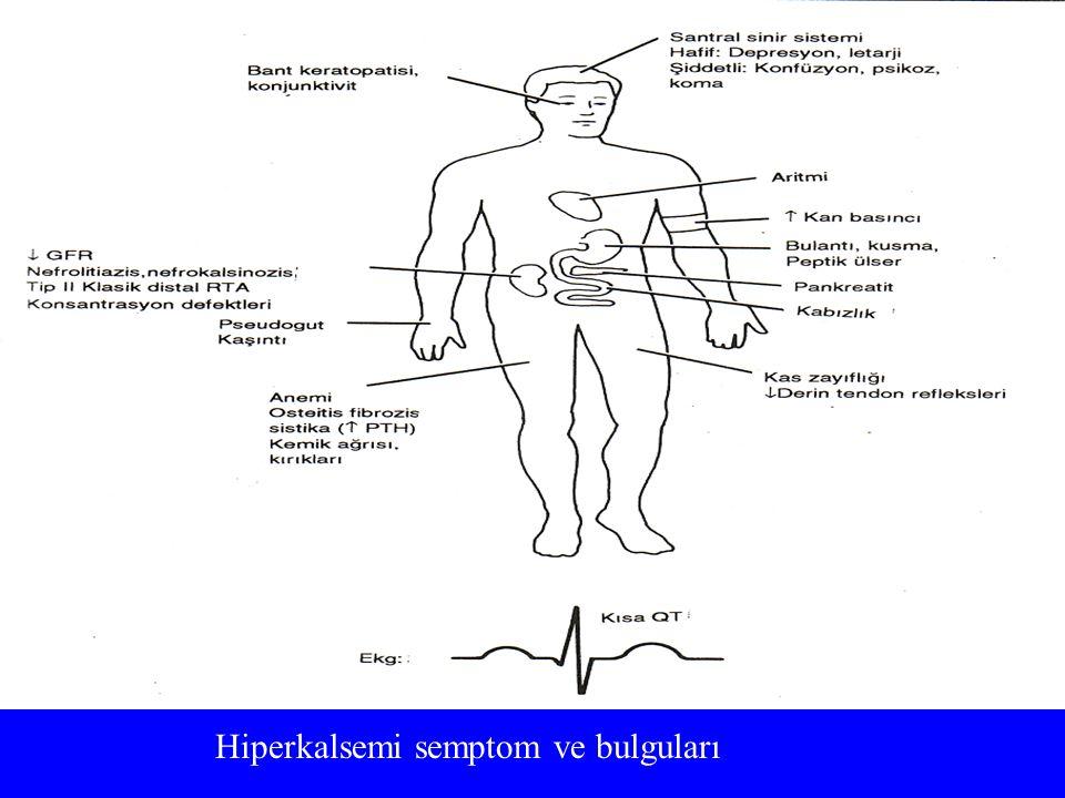 Hiperkalsemi semptom ve bulguları