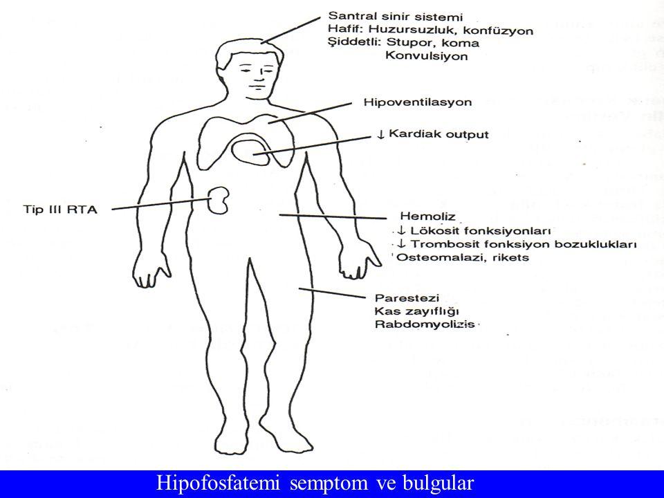 Hipofosfatemi semptom ve bulgular