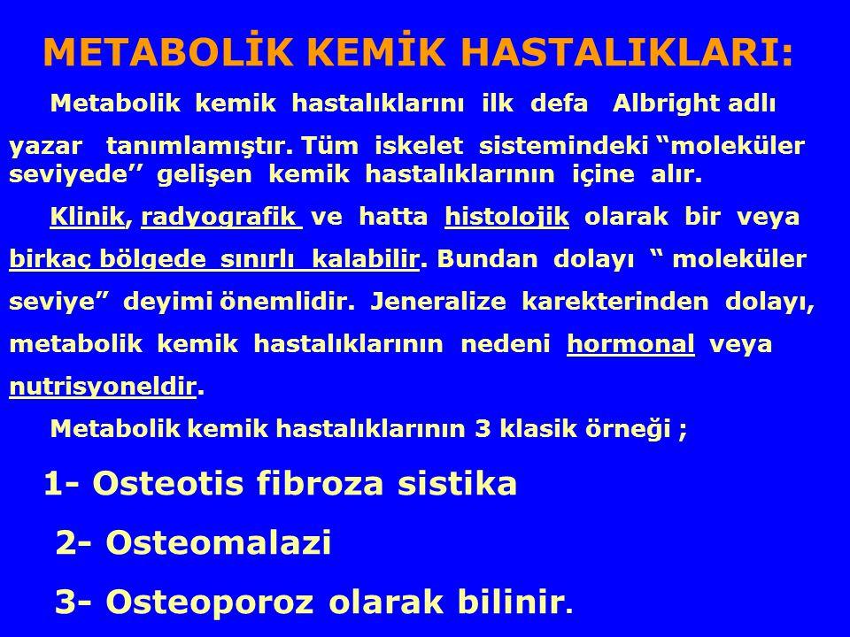 3- Osteoporoz olarak bilinir.