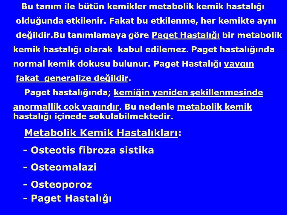 - Osteotis fibroza sistika - Osteomalazi - Osteoporoz