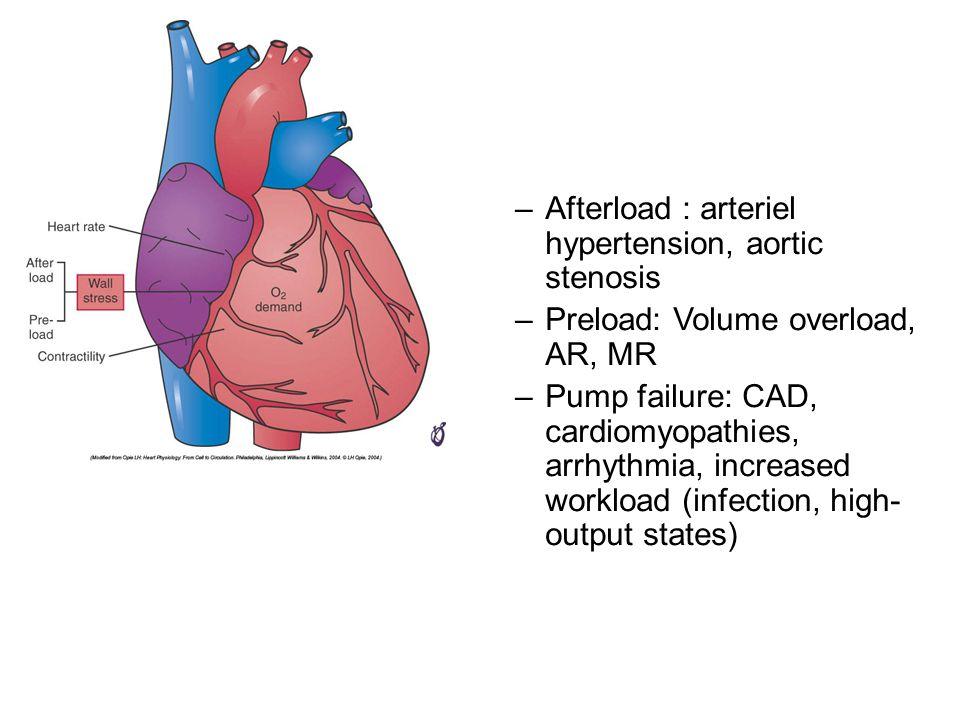 Afterload : arteriel hypertension, aortic stenosis