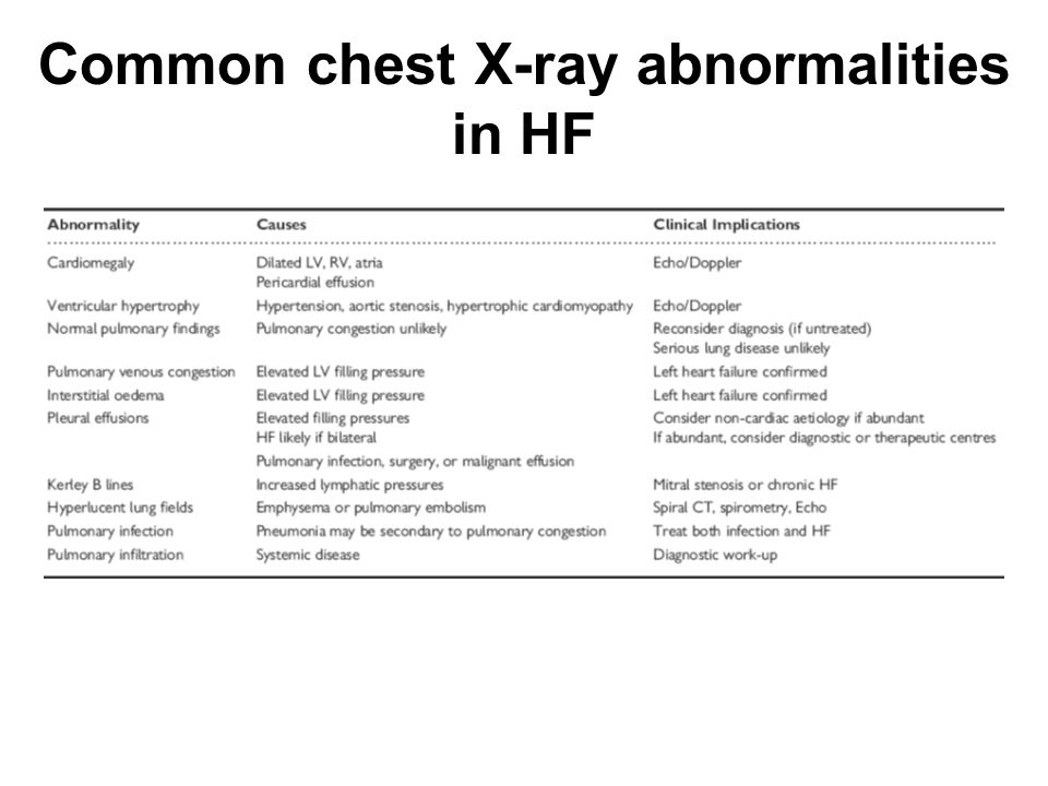 Common chest X-ray abnormalities in HF