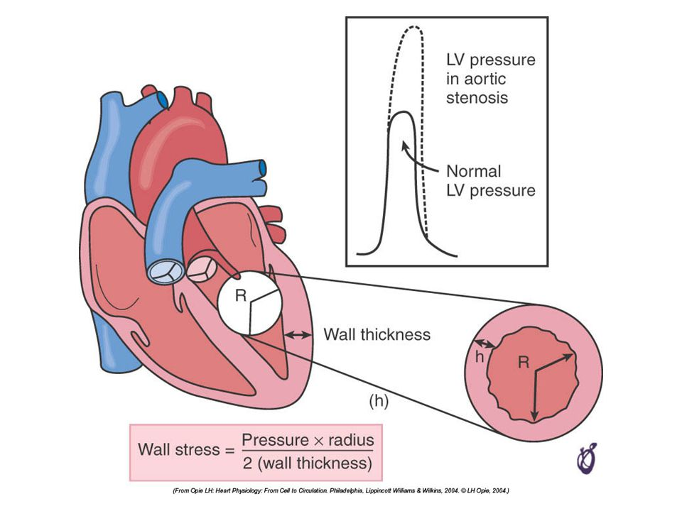 FIGURE 21–21 Wall stress increases as the afterload increases