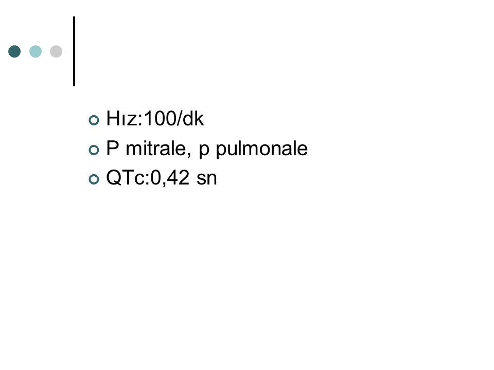 Hız:100/dk P mitrale, p pulmonale QTc:0,42 sn