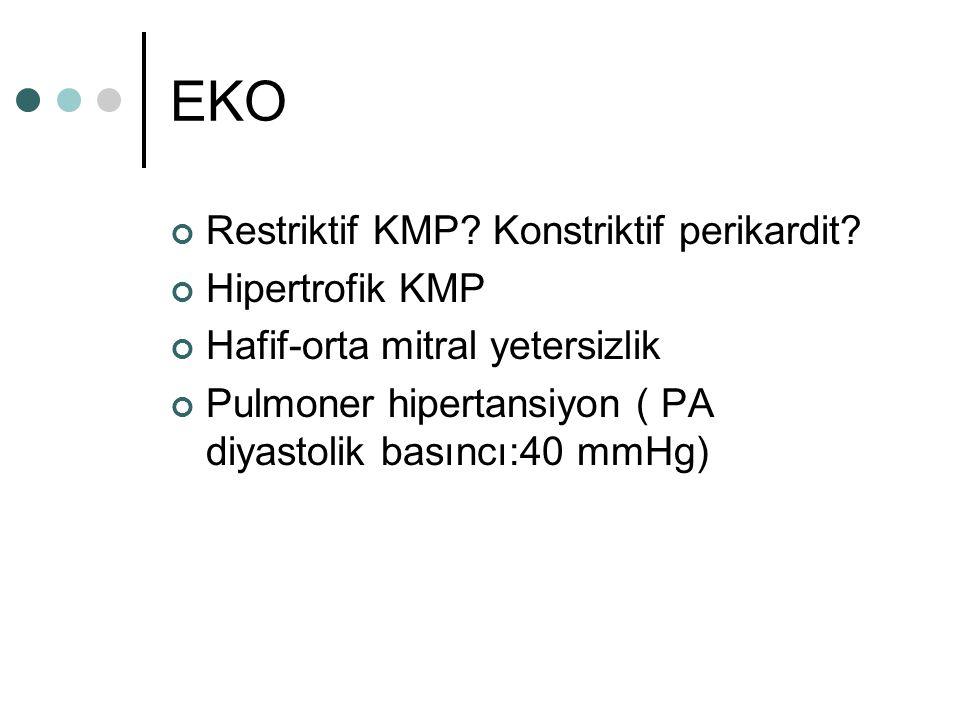 EKO Restriktif KMP Konstriktif perikardit Hipertrofik KMP
