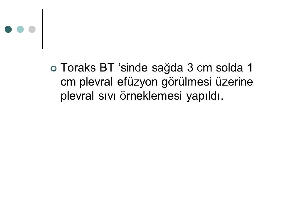 Toraks BT 'sinde sağda 3 cm solda 1 cm plevral efüzyon görülmesi üzerine plevral sıvı örneklemesi yapıldı.