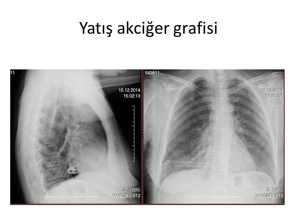 Yatış akciğer grafisi