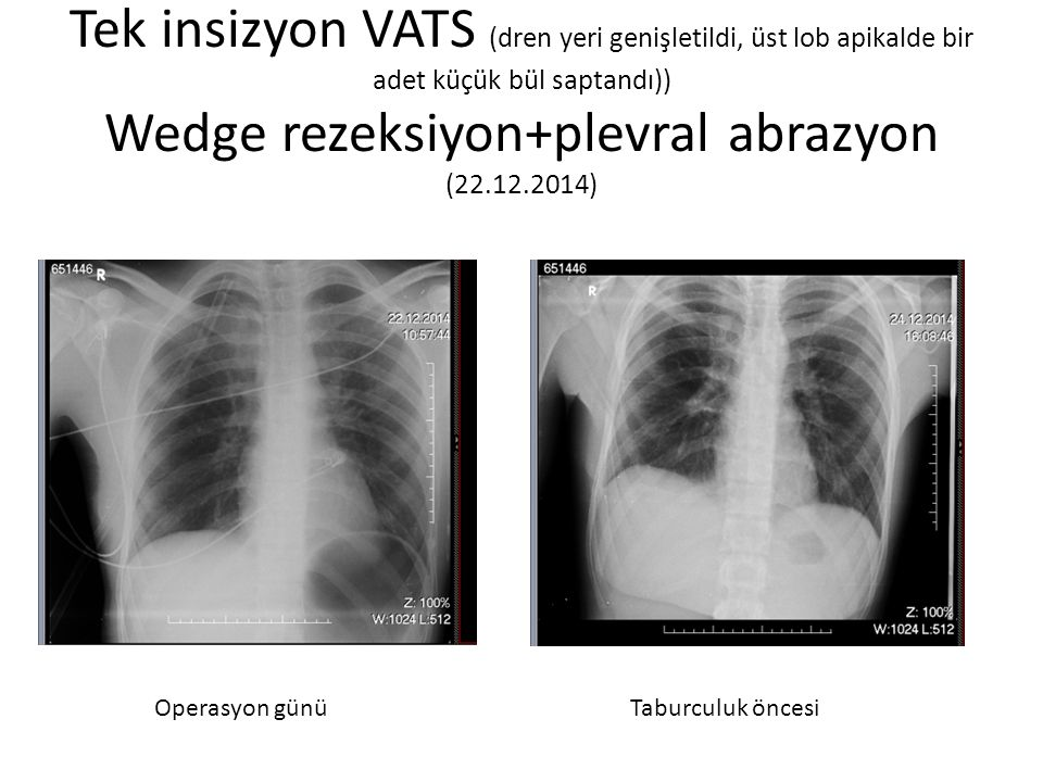 Tek insizyon VATS (dren yeri genişletildi, üst lob apikalde bir adet küçük bül saptandı)) Wedge rezeksiyon+plevral abrazyon (22.12.2014)