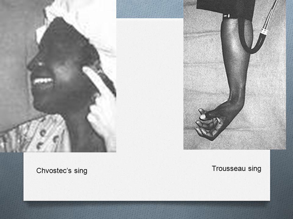 Trousseau sing Chvostec's sing