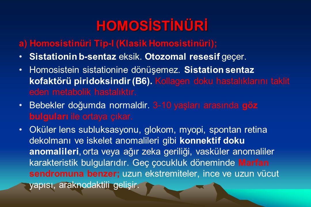 HOMOSİSTİNÜRİ a) Homosistinüri Tip-I (Klasik Homosistinüri);