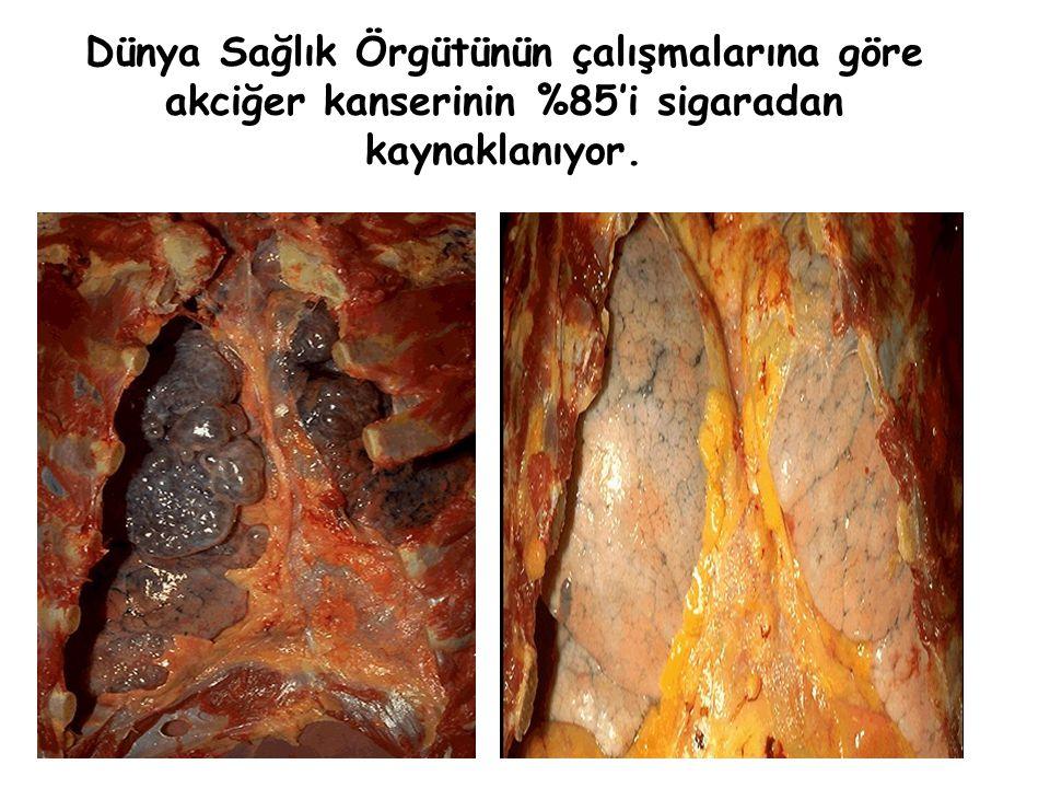 Dünya Sağlık Örgütünün çalışmalarına göre akciğer kanserinin %85'i sigaradan kaynaklanıyor.