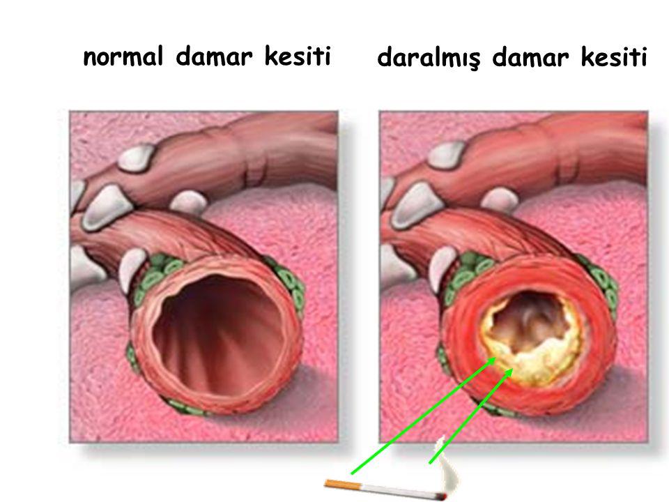 daralmış damar kesiti normal damar kesiti