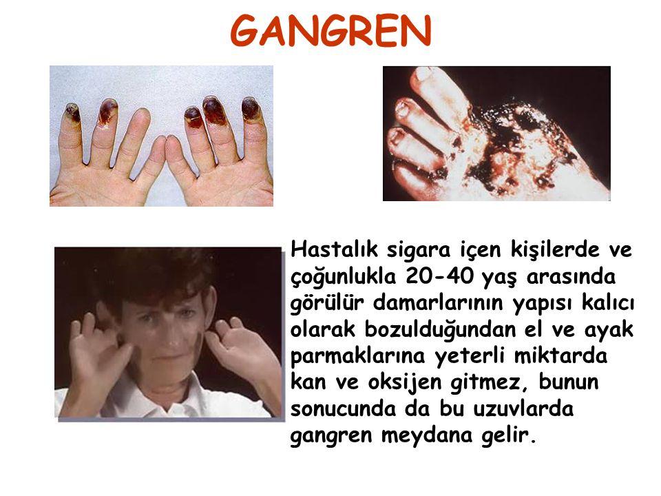 GANGREN Hastalık sigara içen kişilerde ve