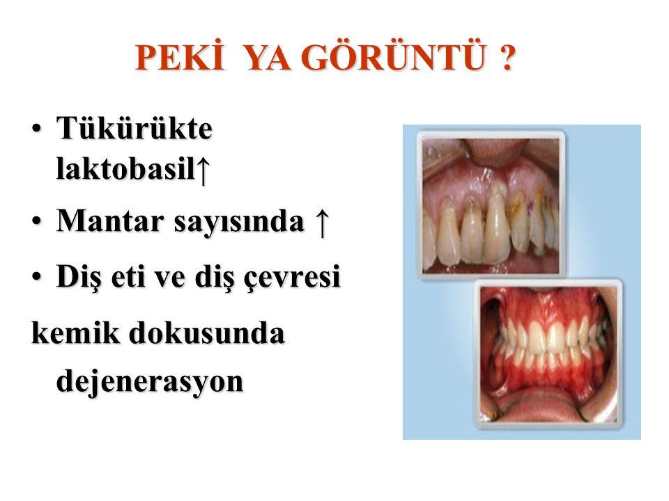Tükürükte laktobasil↑ Mantar sayısında ↑ Diş eti ve diş çevresi