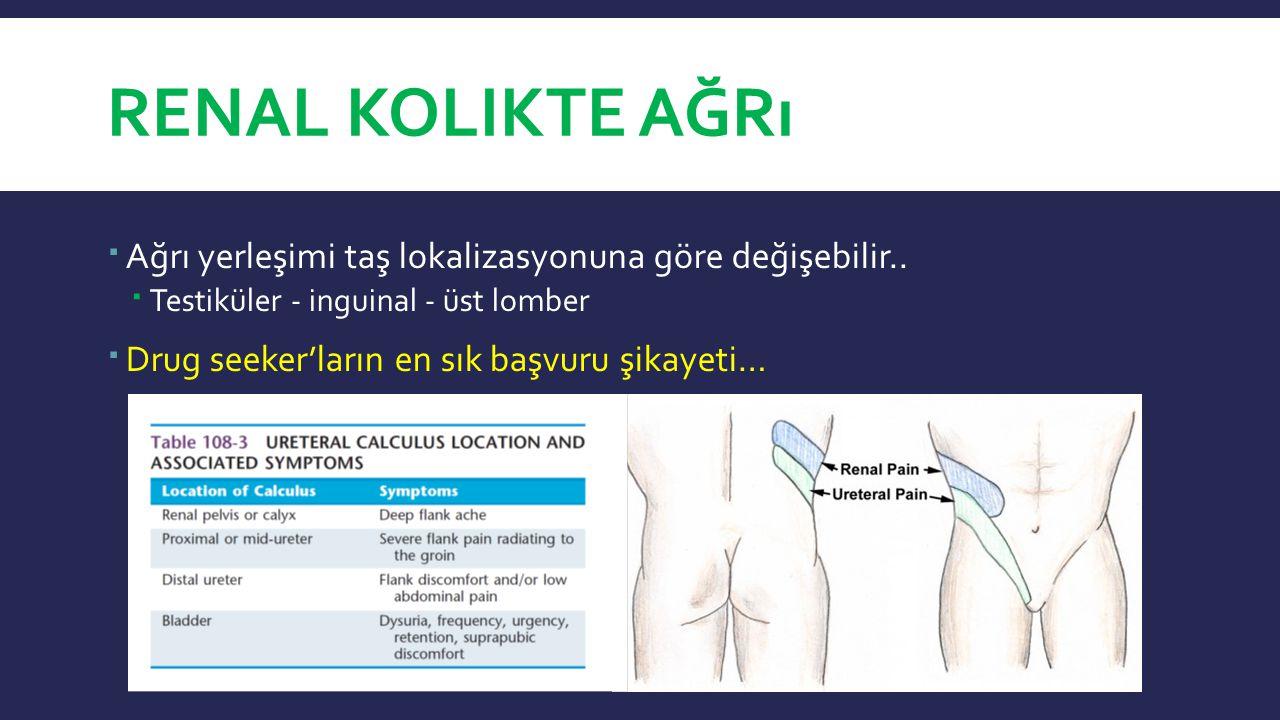 Renal Kolikte ağrı Ağrı yerleşimi taş lokalizasyonuna göre değişebilir.. Testiküler - inguinal - üst lomber.