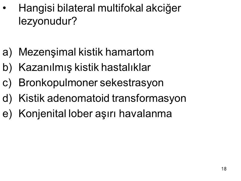 Hangisi bilateral multifokal akciğer lezyonudur