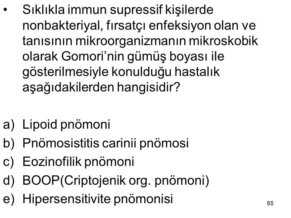 Sıklıkla immun supressif kişilerde nonbakteriyal, fırsatçı enfeksiyon olan ve tanısının mikroorganizmanın mikroskobik olarak Gomori'nin gümüş boyası ile gösterilmesiyle konulduğu hastalık aşağıdakilerden hangisidir