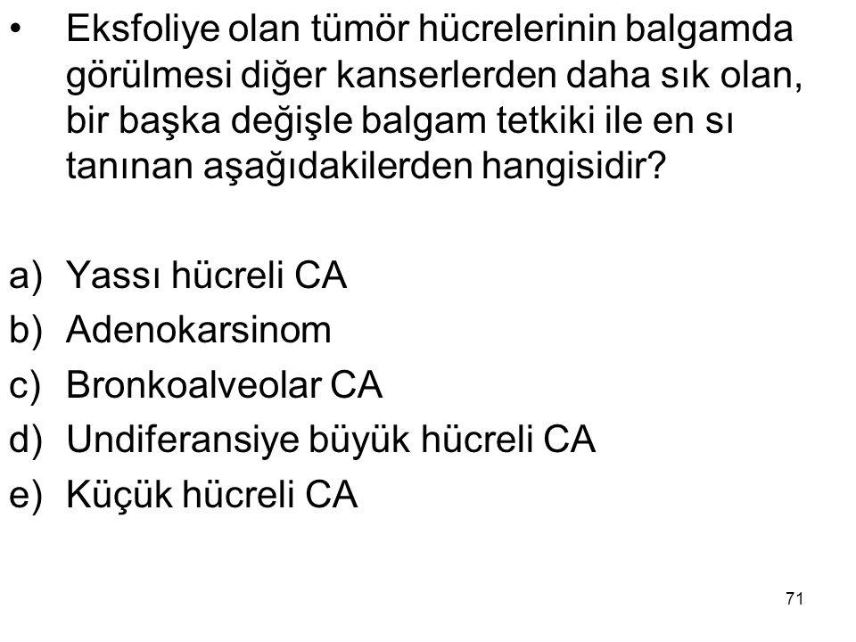Eksfoliye olan tümör hücrelerinin balgamda görülmesi diğer kanserlerden daha sık olan, bir başka değişle balgam tetkiki ile en sı tanınan aşağıdakilerden hangisidir