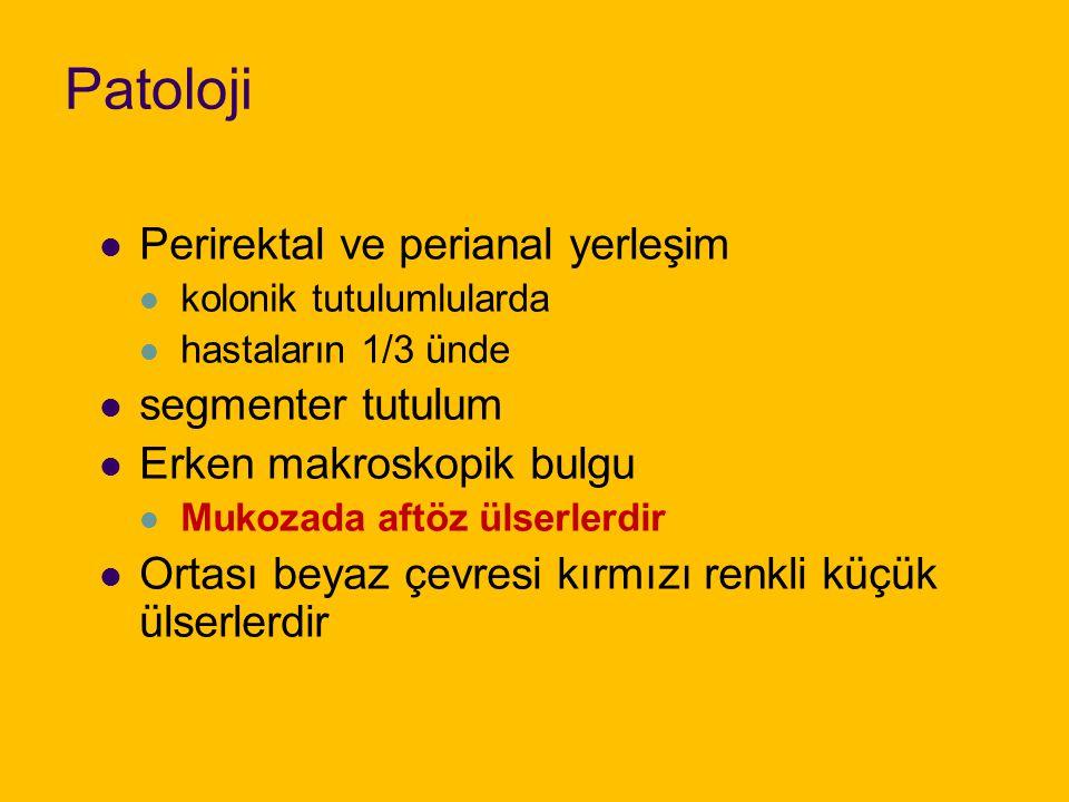 Patoloji Perirektal ve perianal yerleşim segmenter tutulum