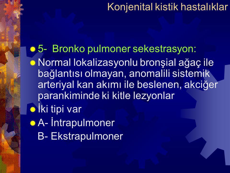 Konjenital kistik hastalıklar