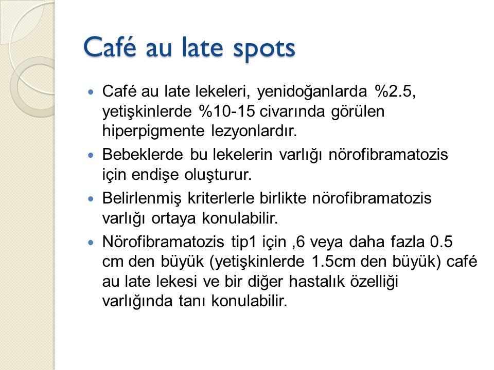 Café au late spots Café au late lekeleri, yenidoğanlarda %2.5, yetişkinlerde %10-15 civarında görülen hiperpigmente lezyonlardır.
