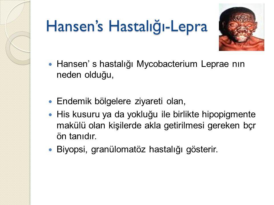 Hansen's Hastalığı-Lepra