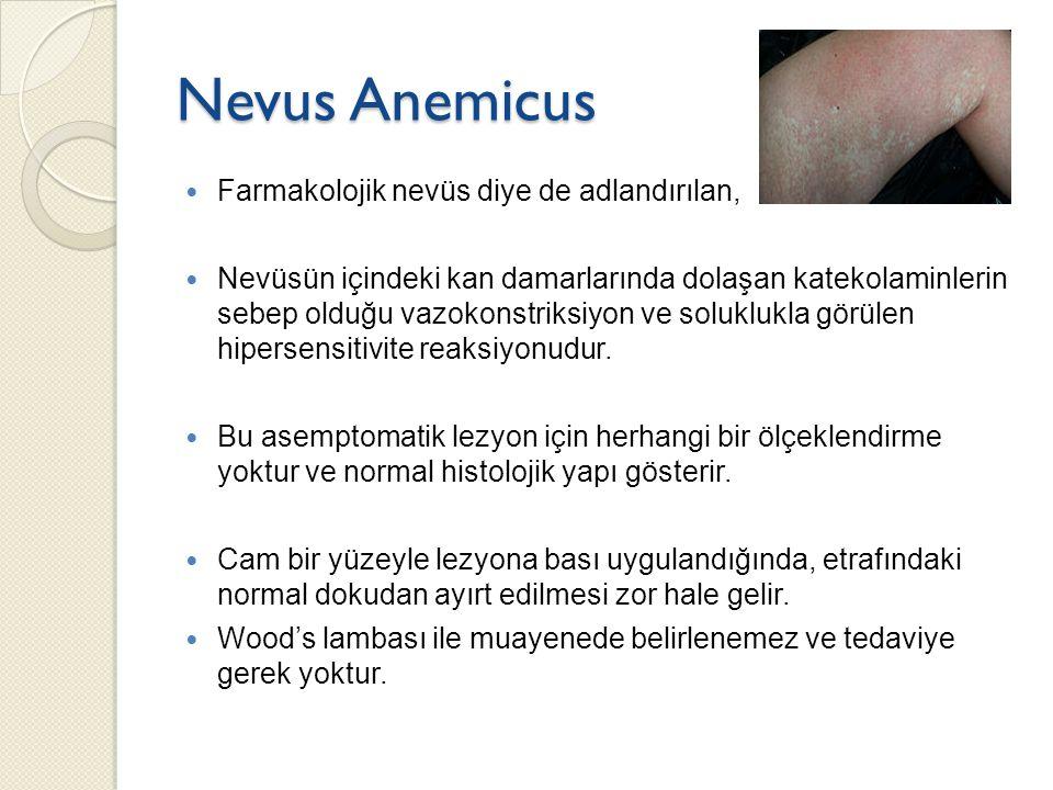 Nevus Anemicus Farmakolojik nevüs diye de adlandırılan,