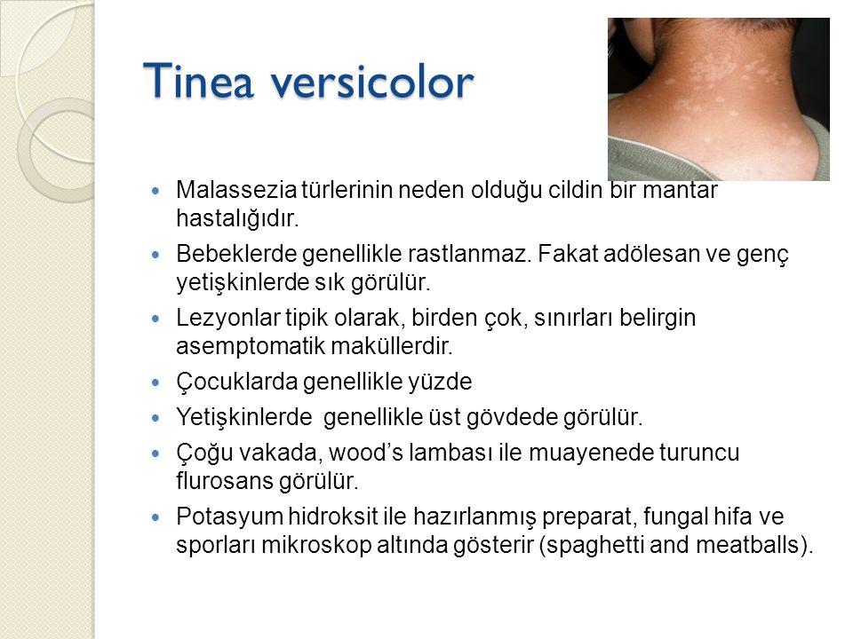 Tinea versicolor Malassezia türlerinin neden olduğu cildin bir mantar hastalığıdır.
