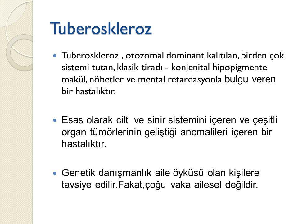 Tuberoskleroz