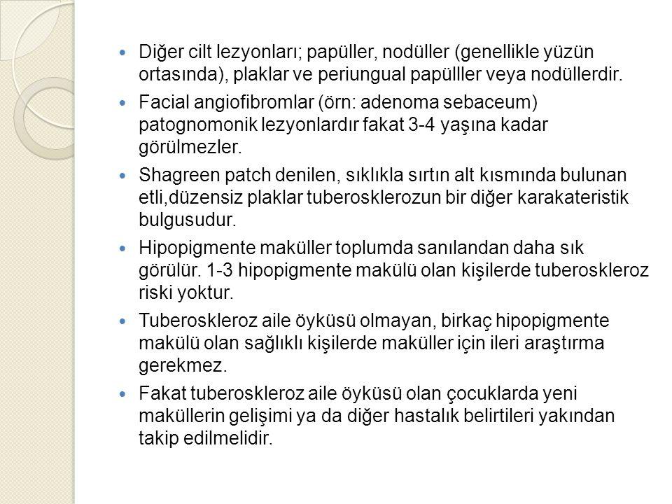 Diğer cilt lezyonları; papüller, nodüller (genellikle yüzün ortasında), plaklar ve periungual papülller veya nodüllerdir.