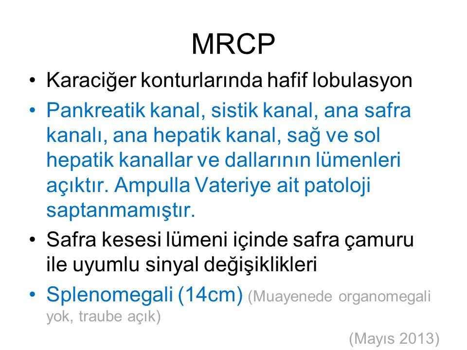 MRCP Karaciğer konturlarında hafif lobulasyon