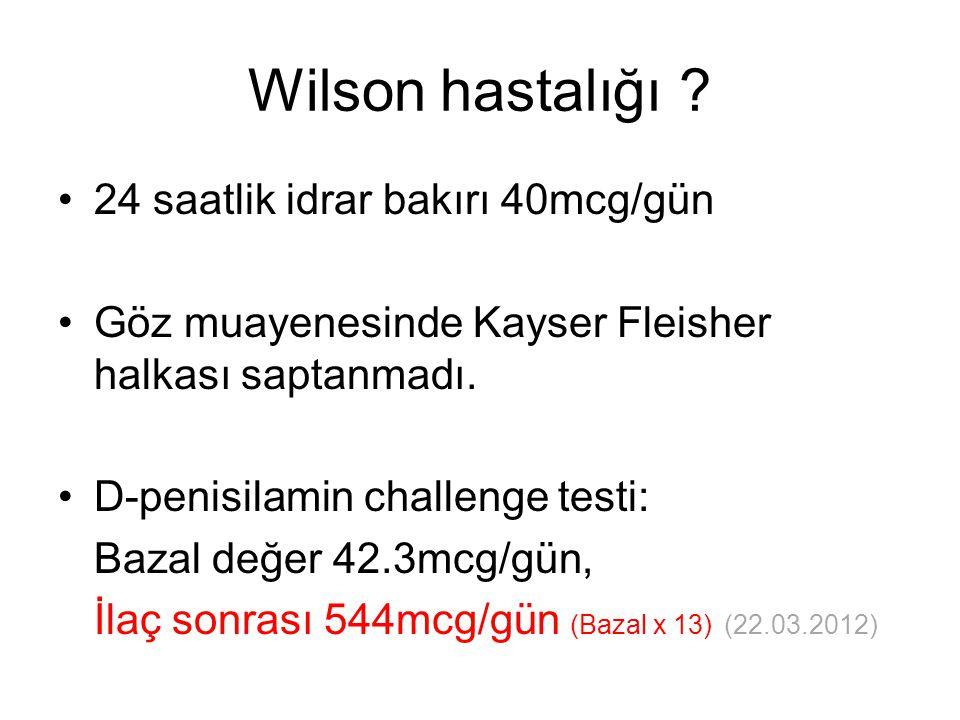 Wilson hastalığı 24 saatlik idrar bakırı 40mcg/gün