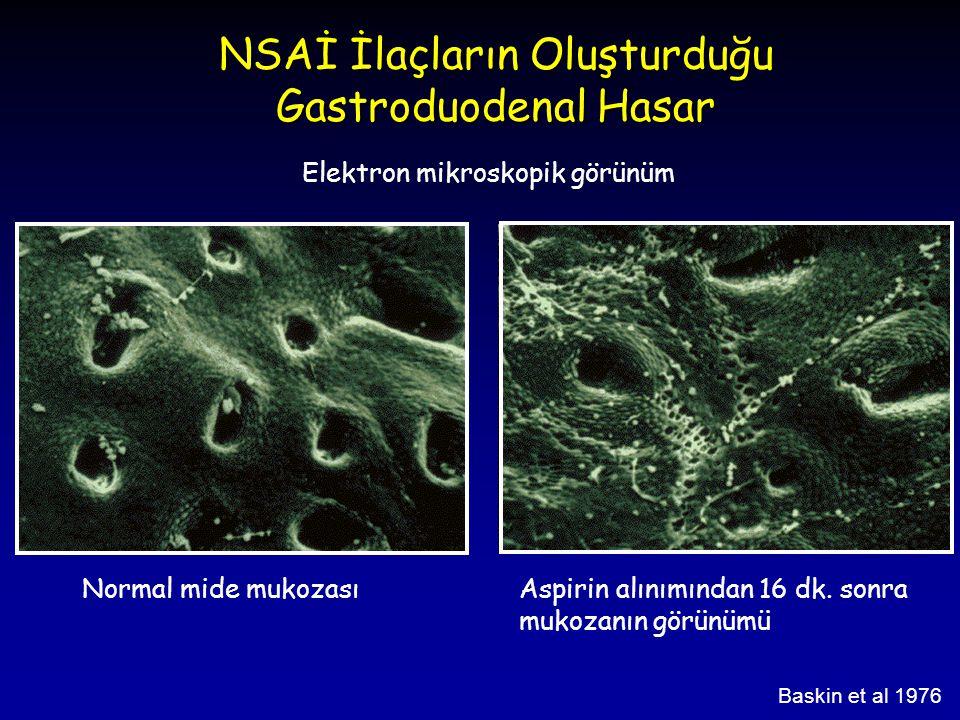 NSAİ İlaçların Oluşturduğu Gastroduodenal Hasar