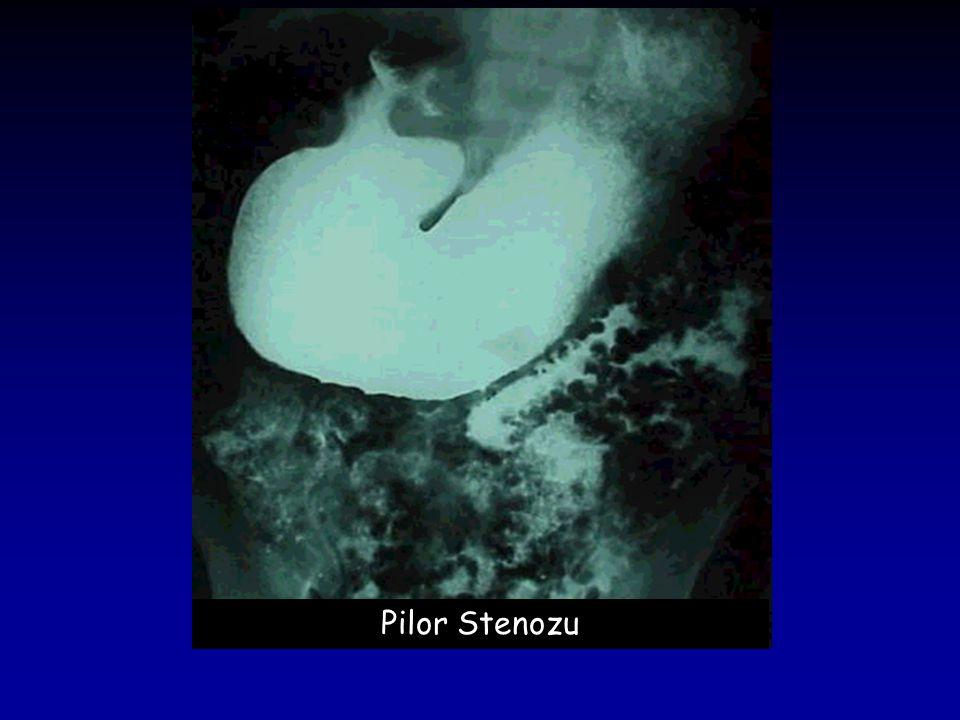 Pilor Stenozu