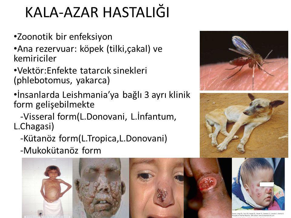 KALA-AZAR HASTALIĞI Zoonotik bir enfeksiyon