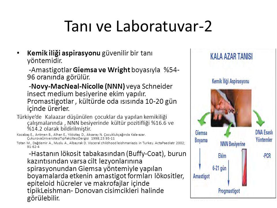 Tanı ve Laboratuvar-2 Kemik iliği aspirasyonu güvenilir bir tanı yöntemidir. -Amastigotlar Giemsa ve Wright boyasıyla %54-96 oranında görülür.