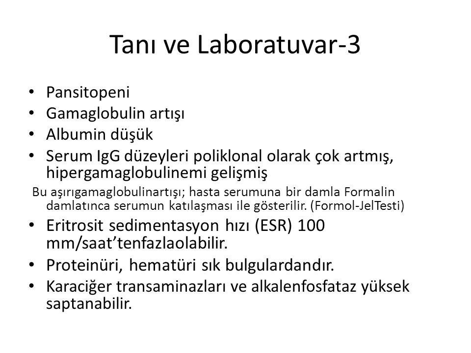 Tanı ve Laboratuvar-3 Pansitopeni. Gamaglobulin artışı. Albumin düşük.