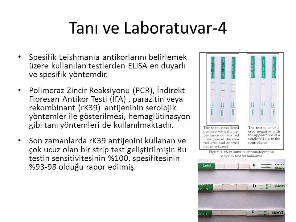 Tanı ve Laboratuvar-4 Spesifik Leishmania antikorlarını belirlemek üzere kullanılan testlerden ELISA en duyarlı ve spesifik yöntemdir.