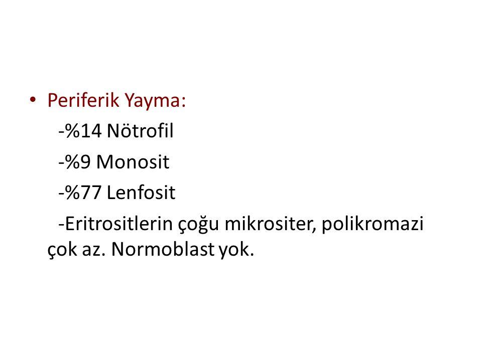 Periferik Yayma: -%14 Nötrofil. -%9 Monosit. -%77 Lenfosit.