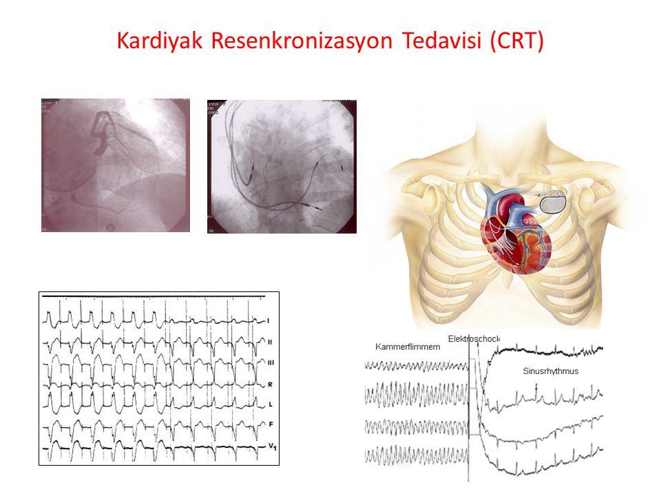 Kardiyak Resenkronizasyon Tedavisi (CRT)