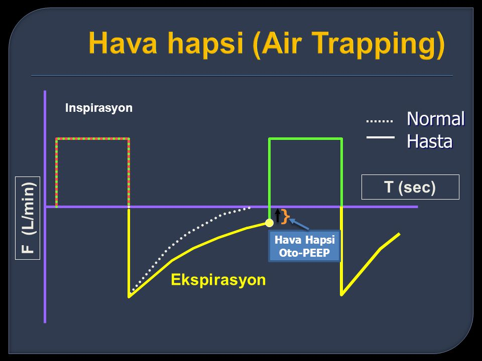 Hava hapsi (Air Trapping)