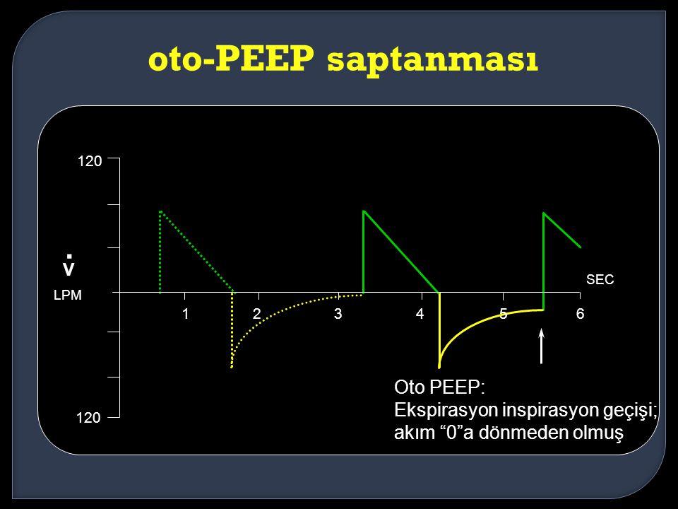 . oto-PEEP saptanması V Oto PEEP: Ekspirasyon inspirasyon geçişi;