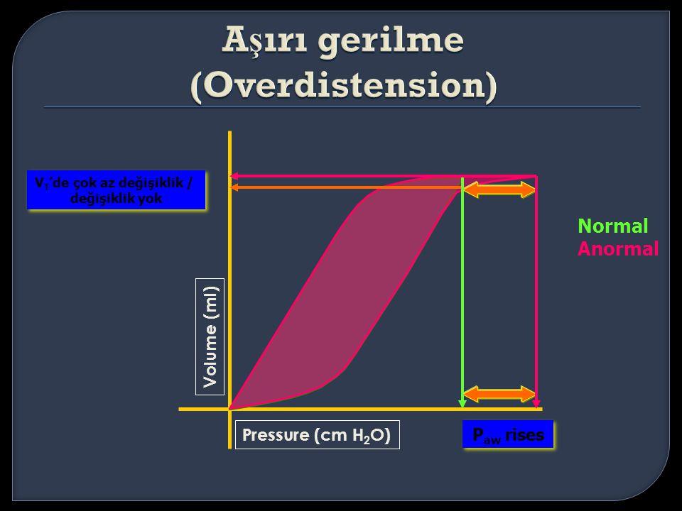 Aşırı gerilme (Overdistension)