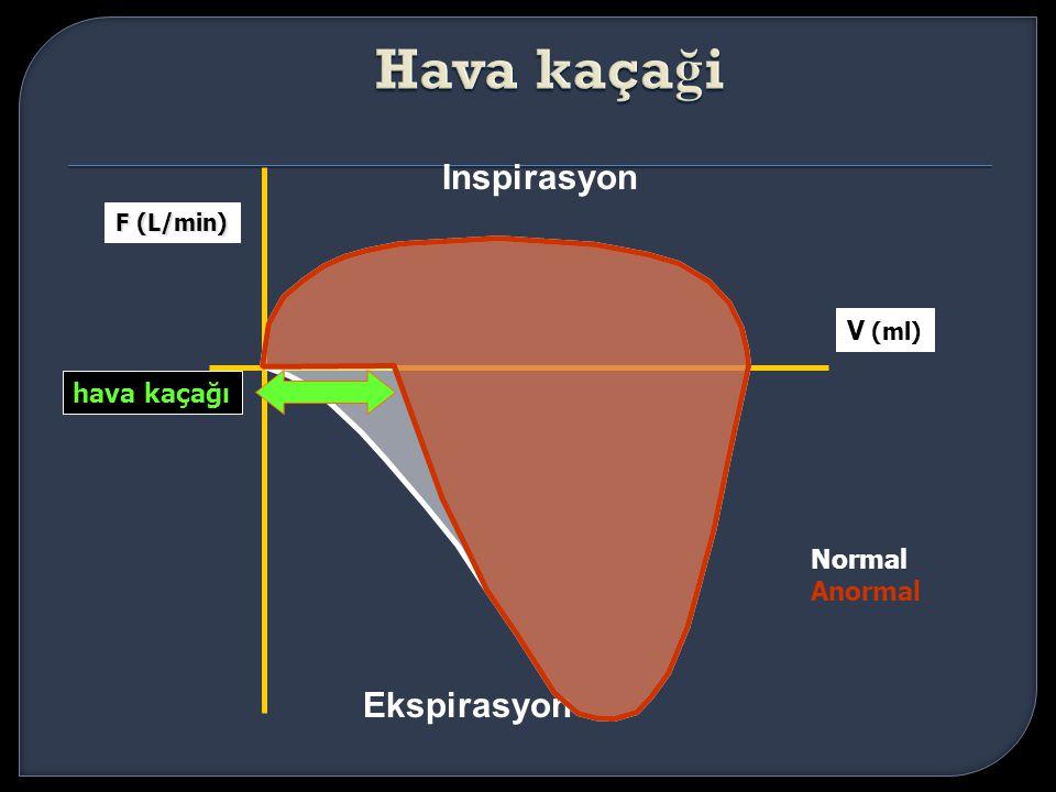 Hava kaçaği Inspirasyon Ekspirasyon V (ml) hava kaçağı Normal Anormal