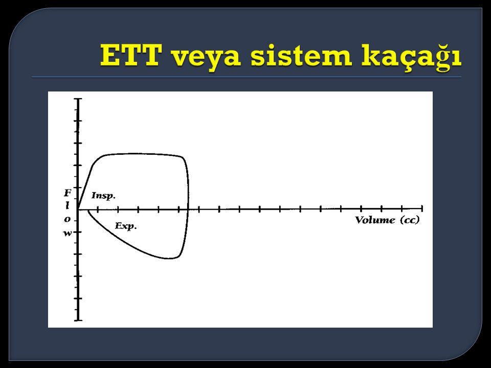 ETT veya sistem kaçağı