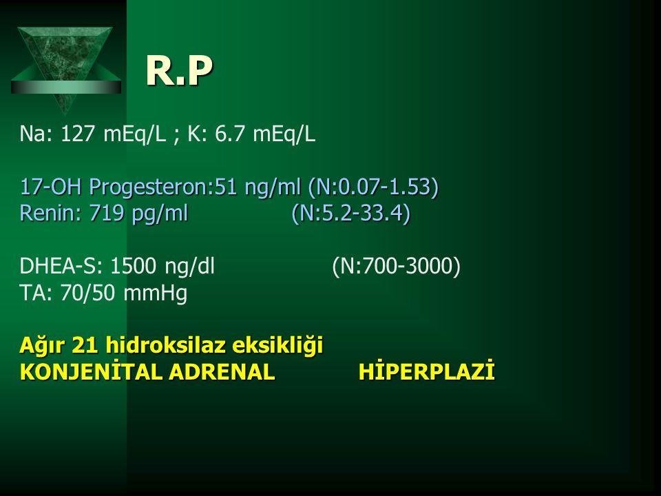R.P Na: 127 mEq/L ; K: 6.7 mEq/L. 17-OH Progesteron:51 ng/ml (N:0.07-1.53) Renin: 719 pg/ml (N:5.2-33.4)
