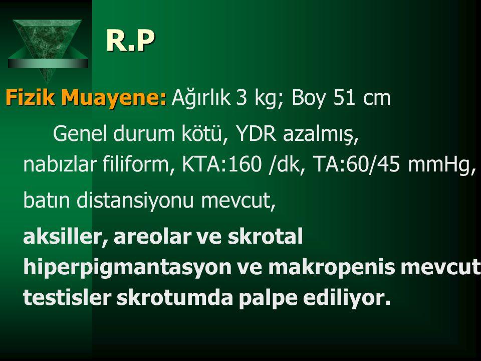 R.P Fizik Muayene: Ağırlık 3 kg; Boy 51 cm