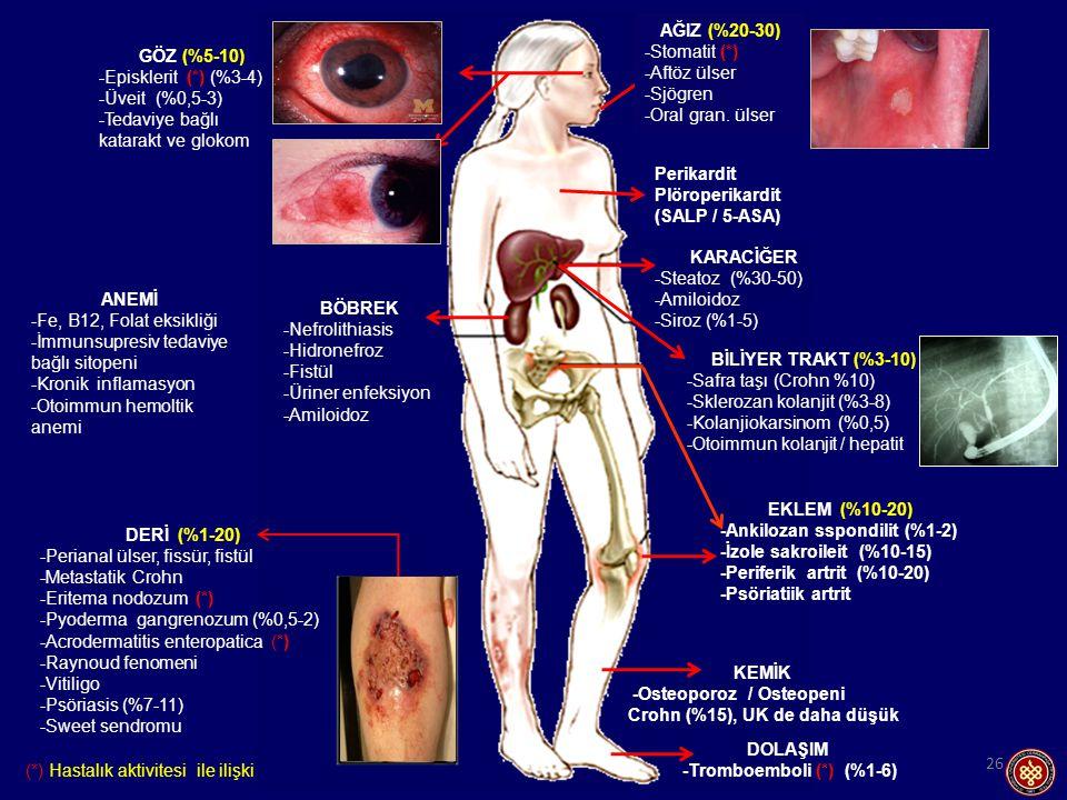 GÖZ (%5-10) -Episklerit (*) (%3-4) -Üveit (%0,5-3) -Tedaviye bağlı katarakt ve glokom. BÖBREK.