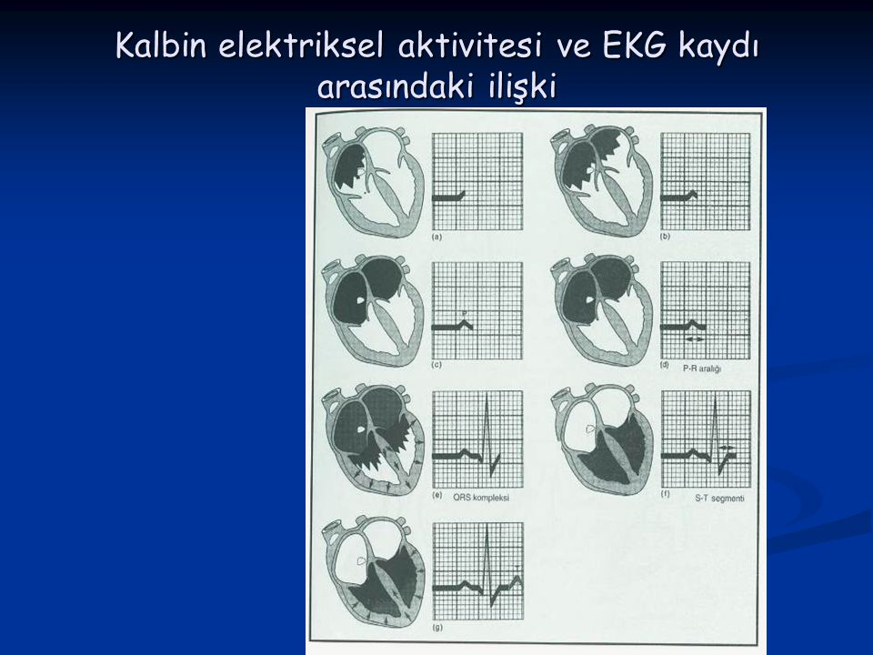 Kalbin elektriksel aktivitesi ve EKG kaydı arasındaki ilişki