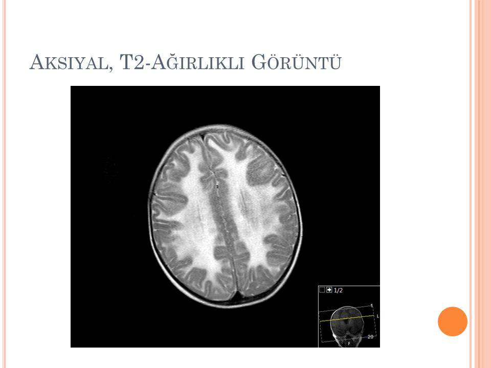 Aksiyal, T2-Ağirlikli Görüntü